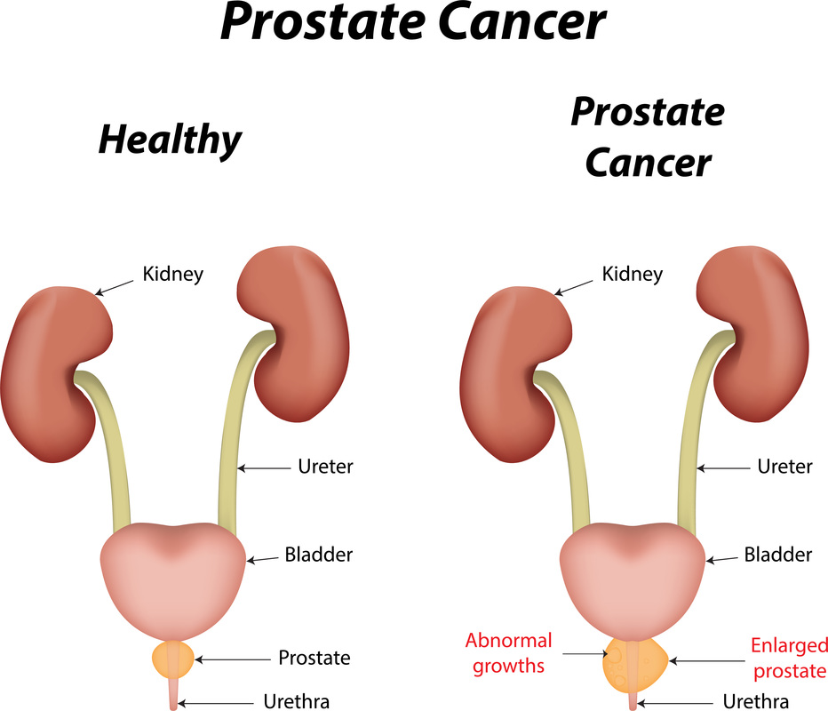 prostate cancer facts among black men - divine wellness, Human Body